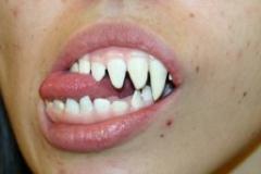 Dental_22