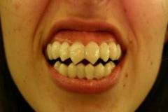 Dental_31