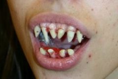 dental_08